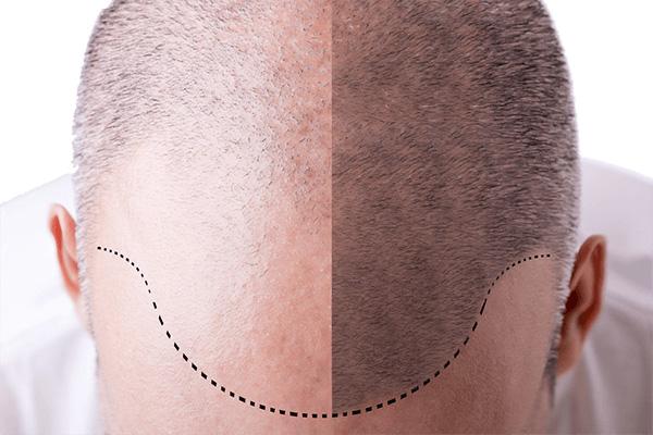 saç ekim yöntemi