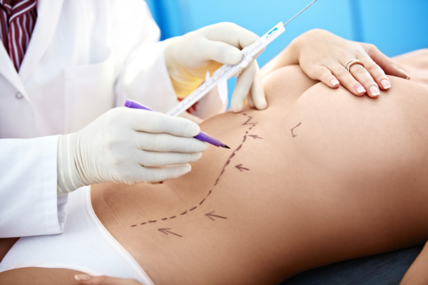 lazer liposuction operasyon